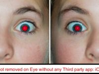 Remove red eye from photos saved in iPhone camera